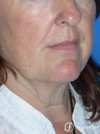 Denver Facial Rejuvenation Face lift, Fat Injections, Laser Resurfacing 7133 - Before Image 2