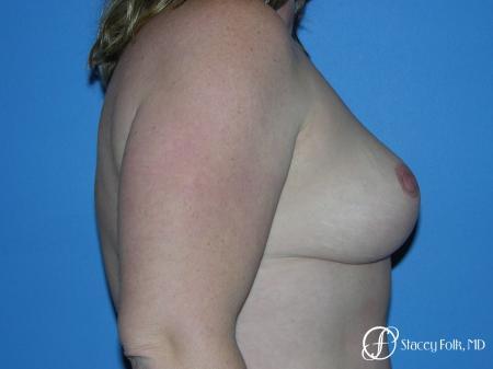 Denver Breast Reduction 4790 -  After Image 3