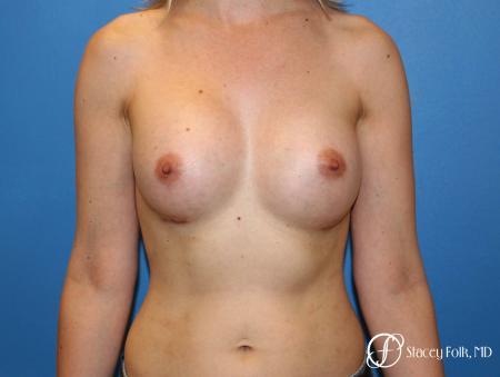 Denver Breast augmentation 7110 -  After Image 1
