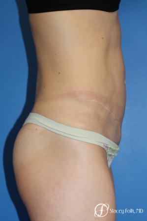 Denver Tummy Tuck (Abdominoplasty) 11239 -  After Image 5