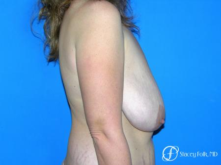 Denver Breast Reduction Mastopexy 5455 - Before and After Image 3