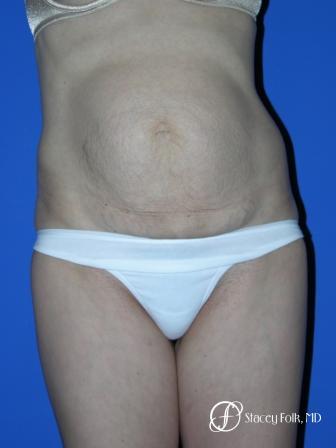 Denver Tummy Tuck 20 - Before Image 1