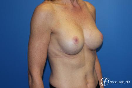 Breast Augmentation with Breast Lift (Augmentation/Mastopexy) -  After Image 2