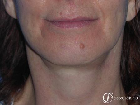 Denver Facial Rejuvenation Face Lift and Fat Injection 7124 -  After Image 1