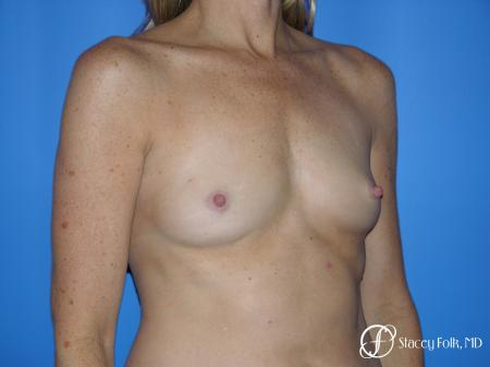 Denver Breast Augmentation 3633 - Before Image 2