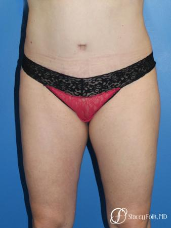 Denver Tummy Tuck (Abdominoplasty) and liposuction 10371 -  After Image 1