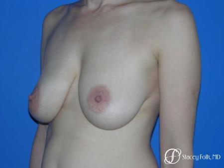 Denver Breast Lift - Mastopexy 7983 - Before Image 2