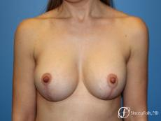 Denver Breast lift and Augmentation 7850 - After Image