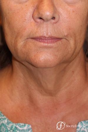 Denver Facial Rejuvenation Face Lift, Fat Injection, Laser Resurfacing 7123 - Before and After Image 3