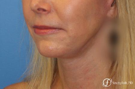 Denver Facial Rejuvenation Face Lift and Fat Injections 7126 -  After Image 2