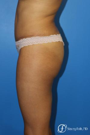 Tummy Tuck (Abdominoplasty) -  After Image 3