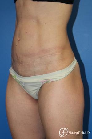Denver Tummy Tuck (Abdominoplasty) 11239 -  After Image 2