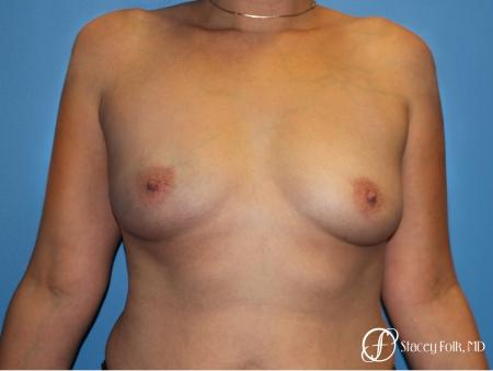 Denver Breast augmentation using textured implants 8271 - Before Image 1
