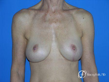 Denver Breast Revision 49 - After Image