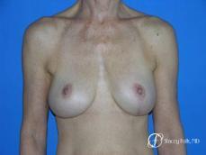 Denver Breast Revision 49 - After Image