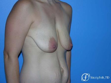 Denver Breast Lift - Mastopexy 7981 - Before Image 2