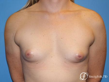 Denver Male to female top surgery with Sientra anatomic textured classic implants 5256 - Before Image