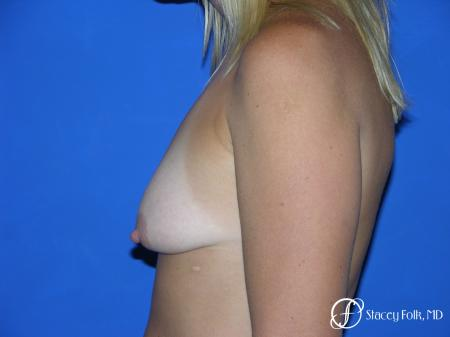 Denver Breast Lift and Augmentation 4558 - Before and After Image 3
