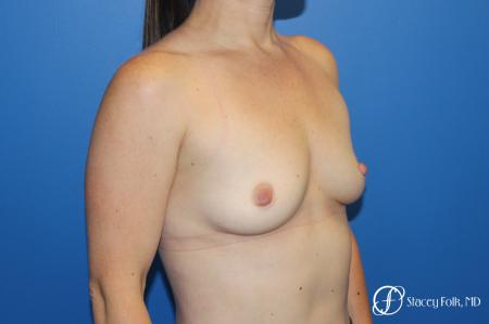 Breast augmentation with Natrelle Inspira breast implants - Before Image 2