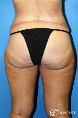Denver Body Lift belt lipectomy, liposuction, mastopexy 5935 -  After Image 2