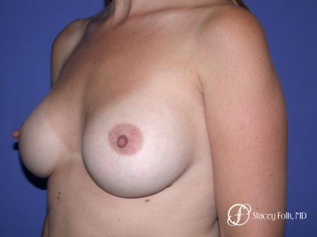 Denver Breast Augmentation 27 -  After Image 2