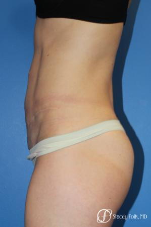 Denver Tummy Tuck (Abdominoplasty) 11239 -  After Image 3