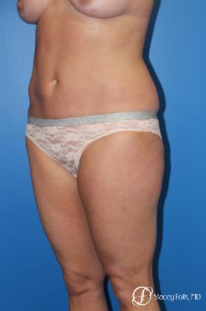 Denver Liposuction 10267 - Before Image 2