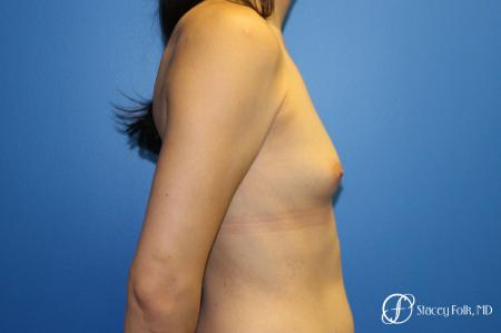 MTF (Male To Female Top Surgery) Breast Augmentation - Before and After Image 3