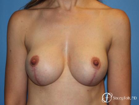Breast Augmentation and Breast lift (Mastopexy) -  After Image 1