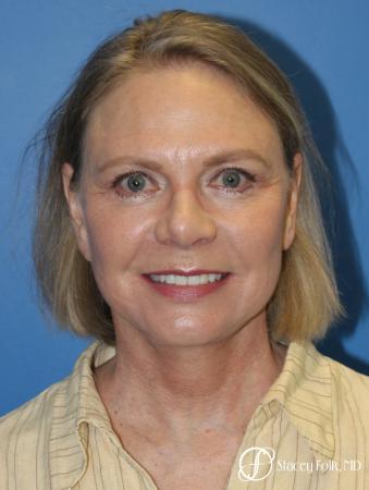 Facial Rejuvenation: Patient 1 - After Image