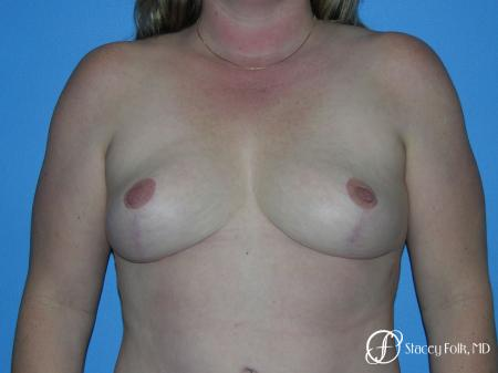 Denver Breast Reduction 4790 -  After Image 1