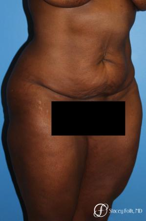Denver Tummy Tuck - Abdominoplasty 7514 - Before and After Image 3