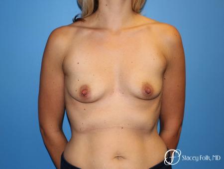 Denver Breast Augmentation 4816 - Before Image 1
