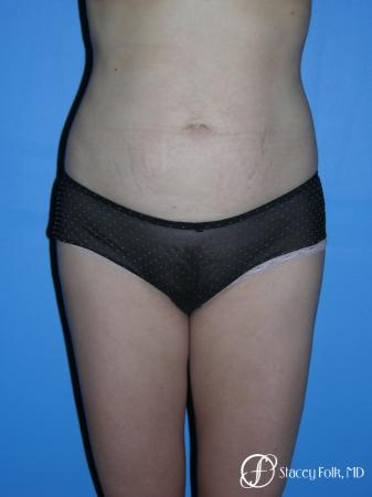 Denver Liposuction 3527 - After Image