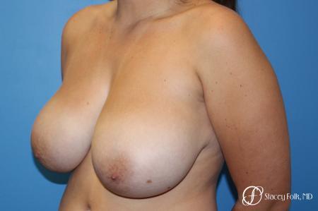 Denver Breast Lift - Mastopexy 10021 - Before Image 2