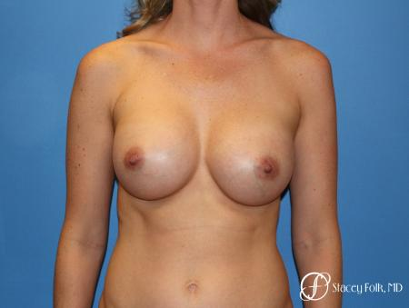 Denver Breast augmentation 4740 - After Image