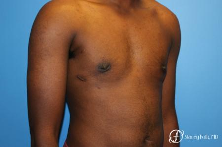 Denver FTM Female to male top surgery using gynecomastia technique 5497 -  After Image 2