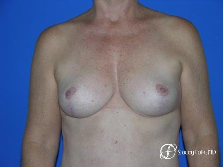 Denver Breast Reduction 36 -  After Image 1