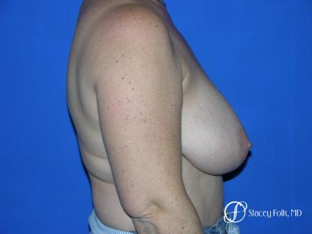 Denver Breast Reduction 36 - Before and After Image 3