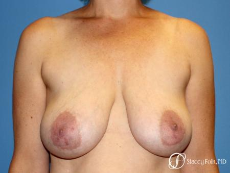 Denver Breast Reduction and Breast Lift - Mastopexy 8231 - Before Image