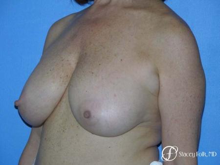 Denver Breast Lift - Mastopexy 7977 - Before Image 2