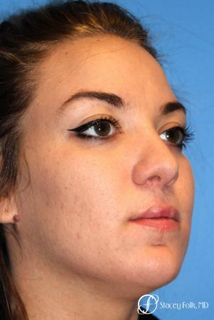Denver Septorhinoplasty and Cleft Lip Repair 8162 -  After Image 3