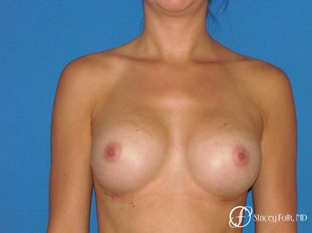 Denver Breast Augmentation 4779 -  After Image 1