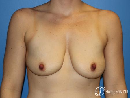 Denver Breast Lift (Mastopexy) with agumentation 9093 - Before Image