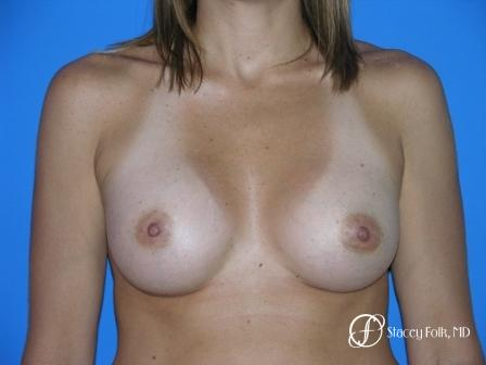Denver Breast Augmentation 960 - After Image
