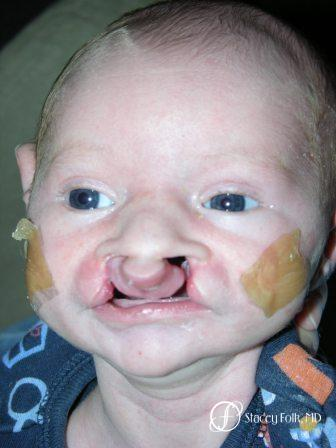 Denver Cleft Lip and Palate Repair 967 - Before Image 1