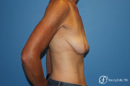 Breast Augmentation with Breast Lift (Augmentation/Mastopexy) - Before and After Image 3