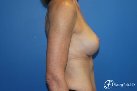 Breast Augmentation with Breast Lift (Augmentation/Mastopexy) -  After Image 3