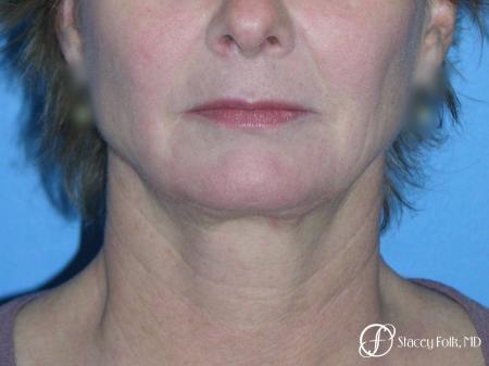 Denver Facial Rejuvenation Face Lift 7121 - Before Image 3