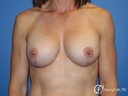 Denver Breast augmentation and breast lift (Mastopexy) 10091 -  After Image 1